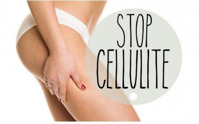 L'été arrive, dites STOP à la cellulite !